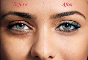 Conceal to remove dark spot and look younger